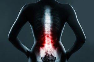 rezonans kręgosłupa szyjnego