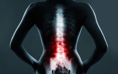 Leczenie bólu kręgosłupa