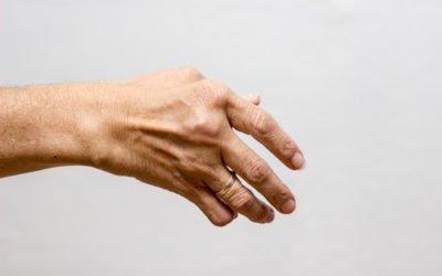 Reumatyzm – schorzenie nie tylko ludzi starszych