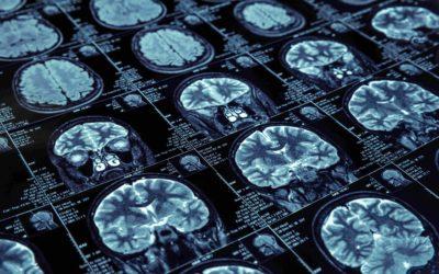 Tomografia czy rezonans magnetyczny głowy?
