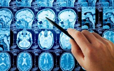 Jakie choroby rezonans magnetyczny wykrywa na wczesnym etapie?