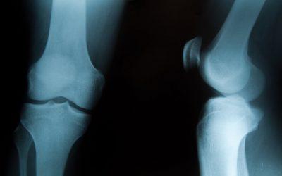 RTG stawu kolanowego – jak przebiega i co wykrywa?